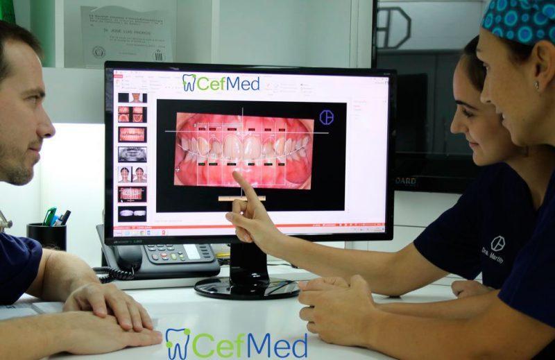fotos intraorales para ortodoncia