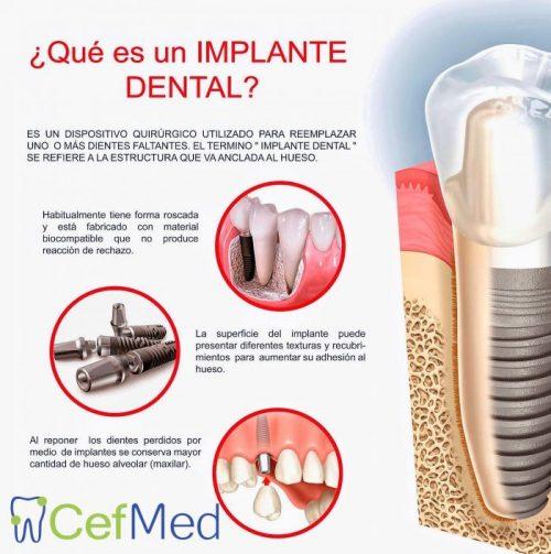 ortodoncia implantes dentales